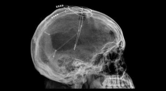 Brain Pacemakers Arent Science Fiction